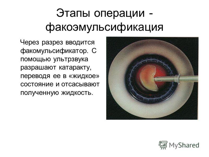 Этапы операции - факоэмульсификация Через разрез вводится факомульсификатор. С помощью ультрзвука разрашают катаракту, переводя ее в «жидкое» состояние и отсасывают полученную жидкость.