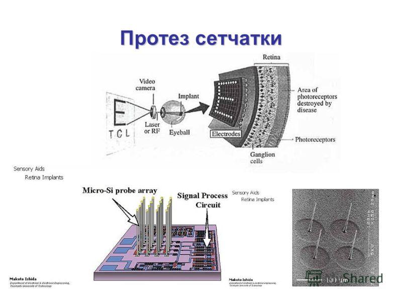 Протез сетчатки