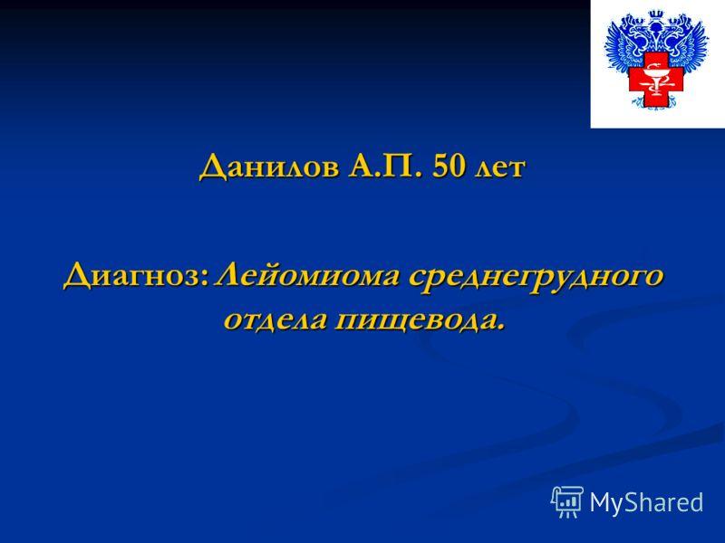 Данилов А.П. 50 лет Диагноз: Лейомиома среднегрудного отдела пищевода.