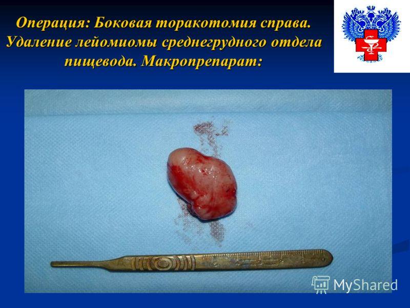 Операция: Боковая торакотомия справа. Удаление лейомиомы среднегрудного отдела пищевода. Макропрепарат: