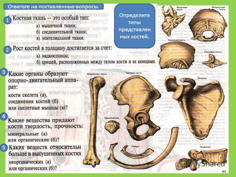 Ответьте на поставленные вопросы. 1 2 3 4 5 Определите типы представлен ных костей.