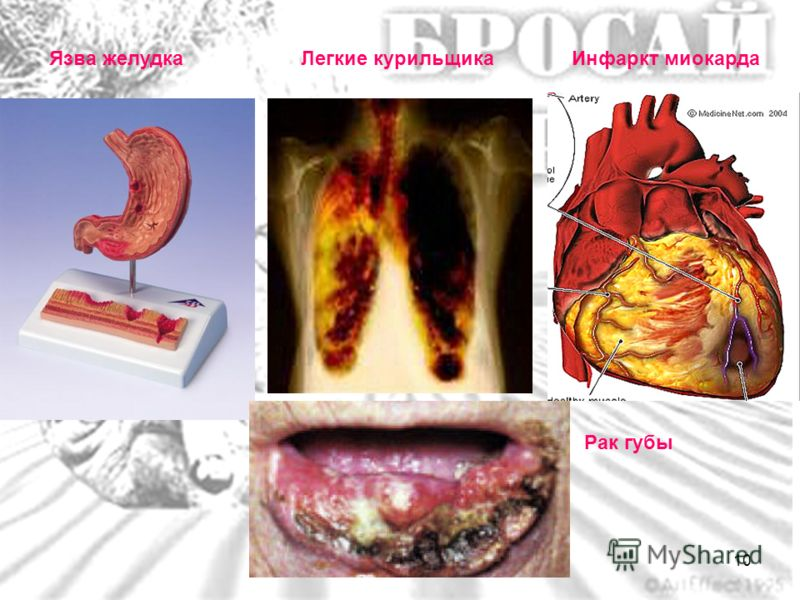 Язва желудкаЛегкие курильщикаИнфаркт миокарда Рак губы 10
