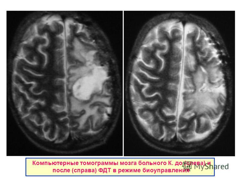 Компьютерные томограммы мозга больного К. до (слева) и после (справа) ФДТ в режиме биоуправления