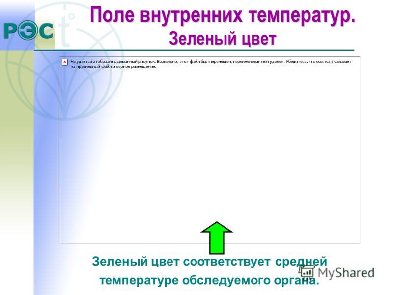 Зеленый цвет соответствует средней температуре обследуемого органа. Поле внутренних температур. Зеленый цвет