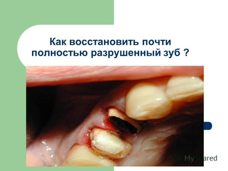 Как восстановить почти полностью разрушенный зуб ?