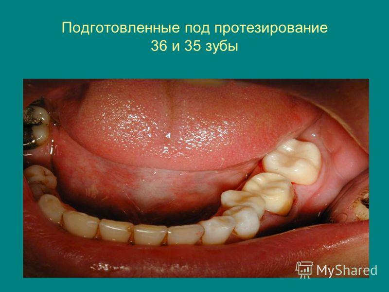 Подготовленные под протезирование 36 и 35 зубы