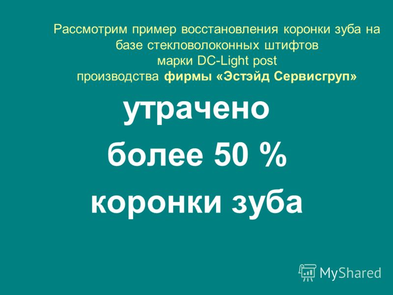 Рассмотрим пример восстановления коронки зуба на базе стекловолоконных штифтов марки DC-Light post производства фирмы «Эстэйд Сервисгруп» утрачено более 50 % коронки зуба