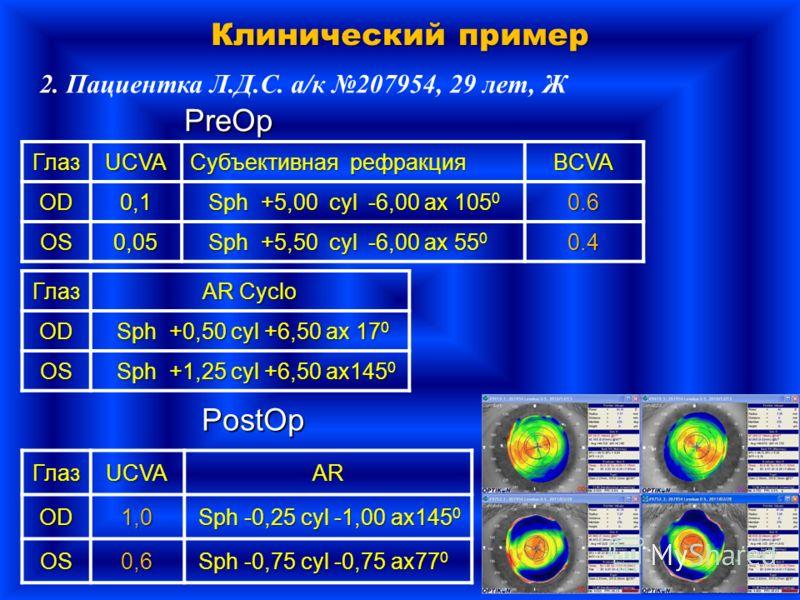 Клинический пример 2. 2. Пациентка Л.Д.С. а/к 207954, 29 лет, Ж ГлазUCVA Субъективная рефракция BCVA OD 0,1 Sph +5,00 cyl -6,00 ax 105 0 Sph +5,00 cyl -6,00 ax 105 00.6 OS 0,05 Sph +5,50 cyl -6,00 ax 55 0 Sph +5,50 cyl -6,00 ax 55 00.4 PreOp PostOpГл