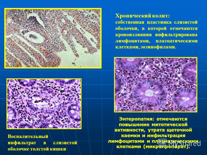 Хронический колит: собственная пластинка слизистой оболочки, в которой отмечаются кровоизлияния инфильтрирована лимфоцитами, плазматическими клетками, эозинофилами. Воспалительный инфильтрат в слизистой оболочке толстой кишки Энтеропатия: отмечаются