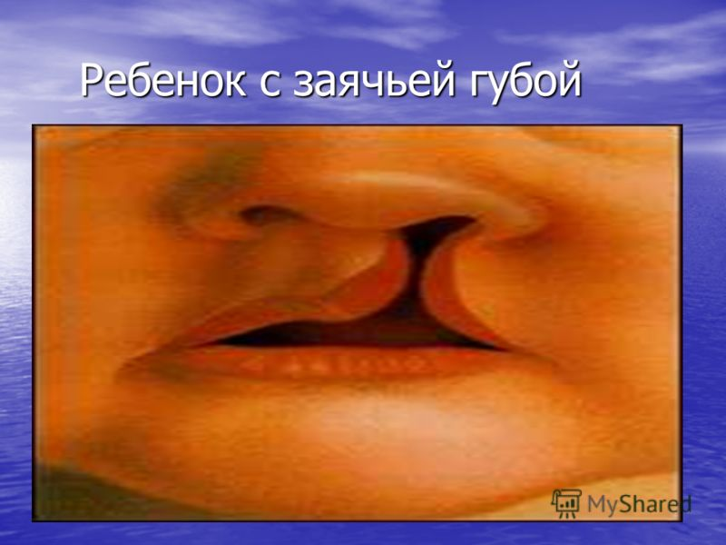 Ребенок с заячьей губой