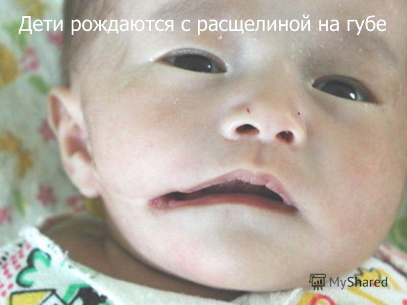 Дети рождаются с расщелиной на губе