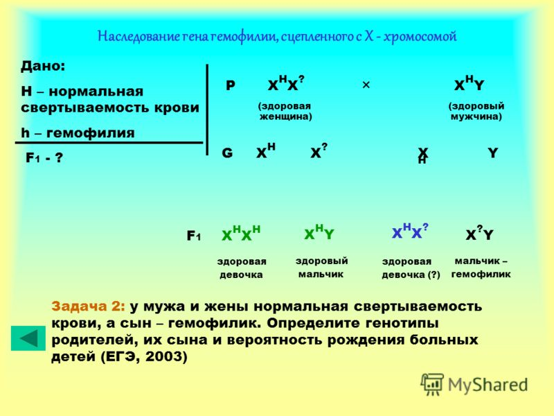 Наследование гена гемофилии, сцепленного с Х - хромосомой Дано: H – нормальная свертываемость крови h – гемофилия F 1 - ? P X H X ? × X H Y (здоровая (здоровый женщина) мужчина) XHXH XHXH X?X? YG здоровая девочка XHXHXHXH здоровый мальчик XHYXHY здор