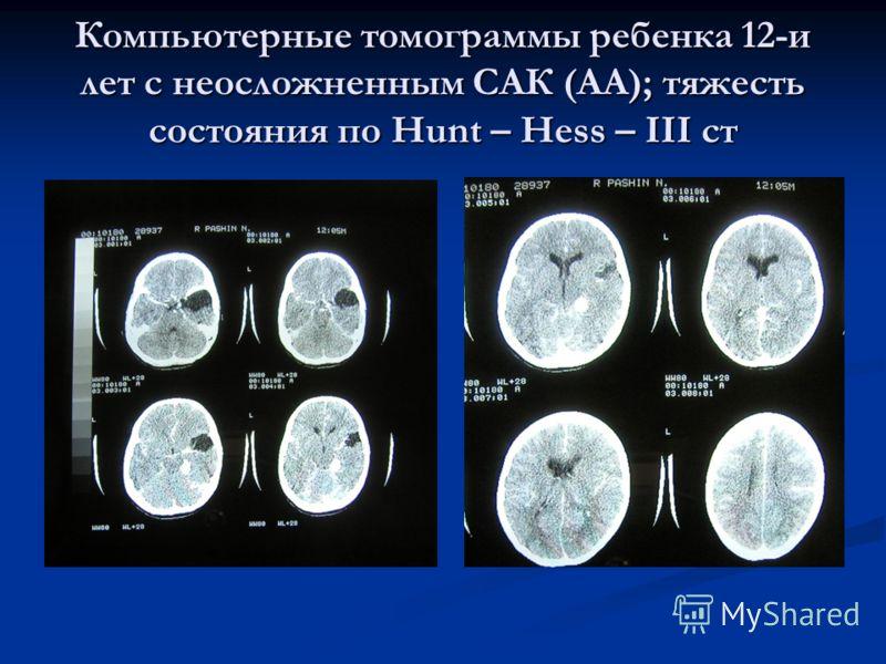 Компьютерные томограммы ребенка 12-и лет с неосложненным САК (АА); тяжесть состояния по Hunt – Hess – III ст