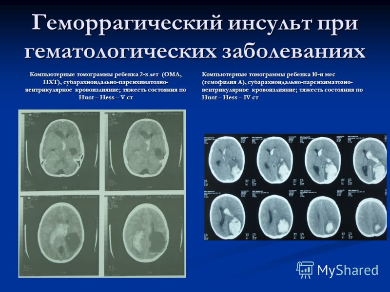 Геморрагический инсульт при гематологических заболеваниях Компьютерные томограммы ребенка 2-х лет (ОМЛ, ПХТ), субарахноидально-паренхиматозно- вентрикулярное кровоизлияние; тяжесть состояния по Hunt – Hess – V ст Компьютерные томограммы ребенка 10-и