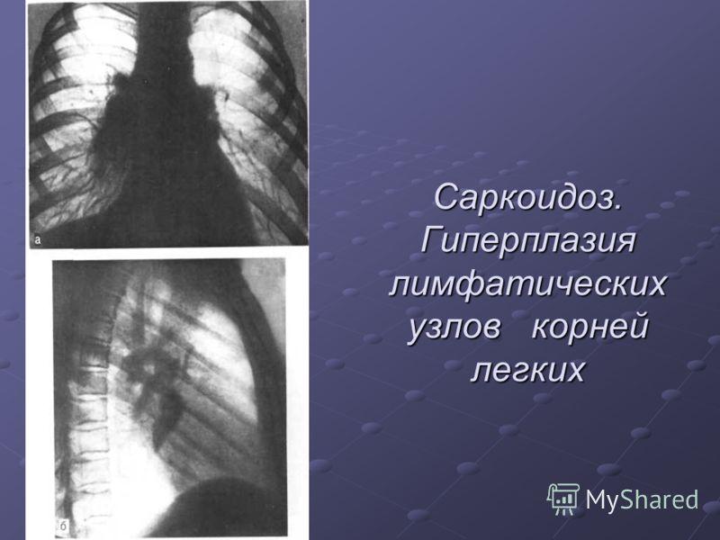 Саркоидоз. Гиперплазия лимфатических узлов корней легких