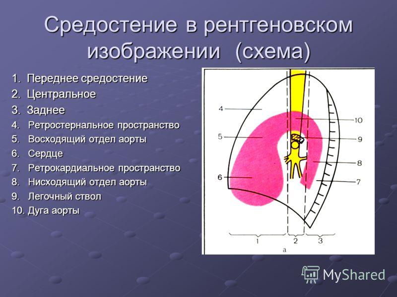 Средостение в рентгеновском изображении (схема) 1. Переднее средостение 2. Центральное 3. Заднее 4. Ретростернальное пространство 5. Восходящий отдел аорты 6. Сердце 7. Ретрокардиальное пространство 8. Нисходящий отдел аорты 9. Легочный ствол 10. Дуг