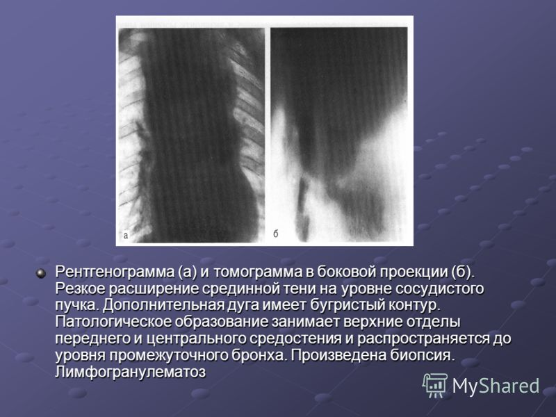 Рентгенограмма (а) и томограмма в боковой проекции (б). Резкое расширение срединной тени на уровне сосудистого пучка. Дополнительная дуга имеет бугристый контур. Патологическое образование занимает верхние отделы переднего и центрального средостения