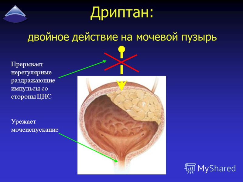 Дриптан: двойное действие на мочевой пузырь Прерывает нерегулярные раздражающие импульсы со стороны ЦНС Урежает мочеиспускание