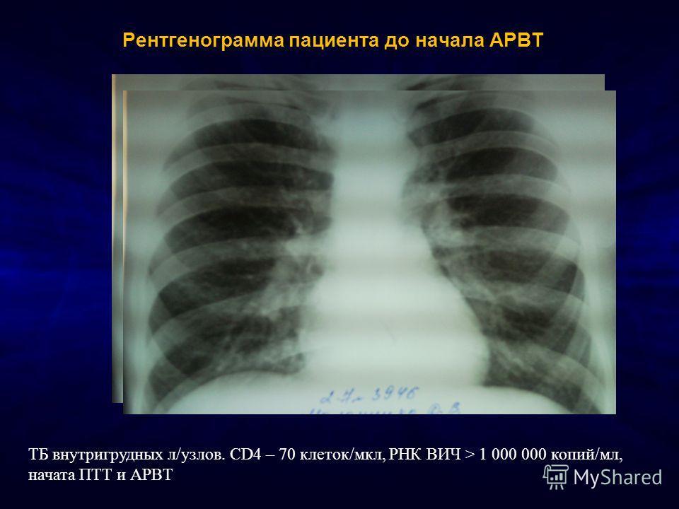 Рентгенограмма пациента до начала АРВТ ТБ внутригрудных л/узлов. CD4 – 70 клеток/мкл, РНК ВИЧ > 1 000 000 копий/мл, начата ПТТ и АРВТ