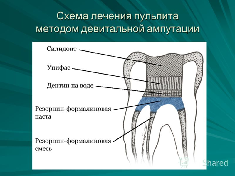 Схема лечения пульпита методом девитальной ампутации