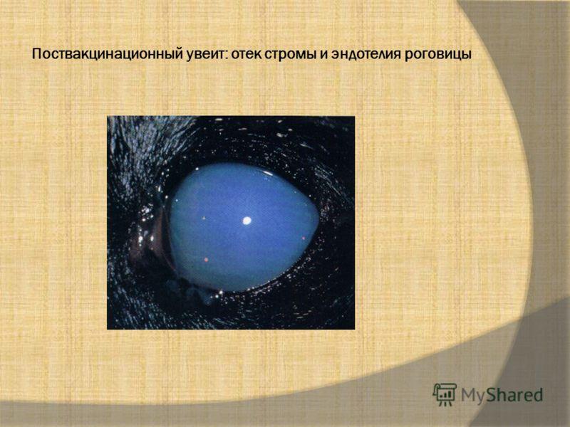 Поствакцинационный увеит: отек стромы и эндотелия роговицы