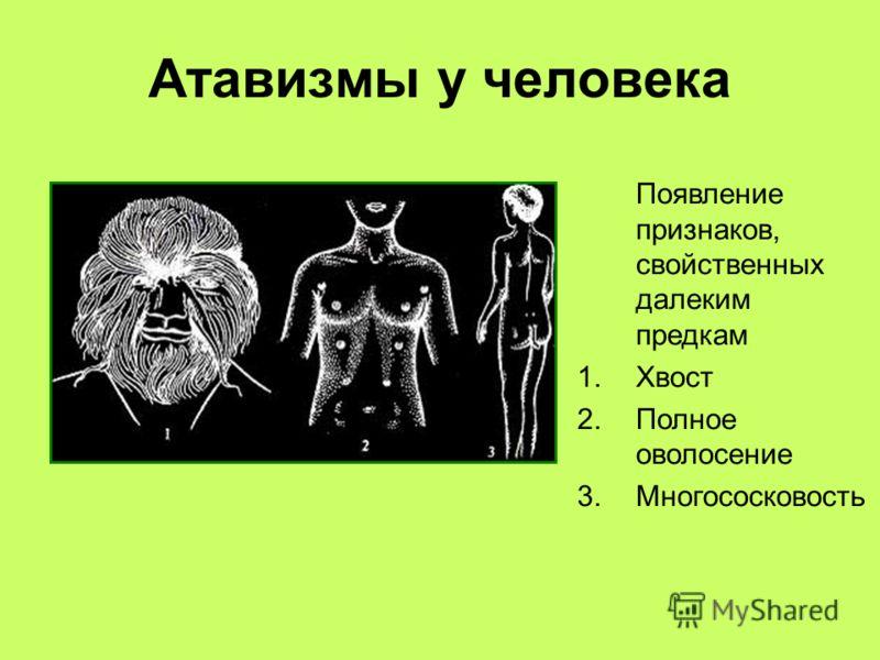 Атавизмы у человека Появление признаков, свойственных далеким предкам 1.Хвост 2.Полное оволосение 3.Многососковость