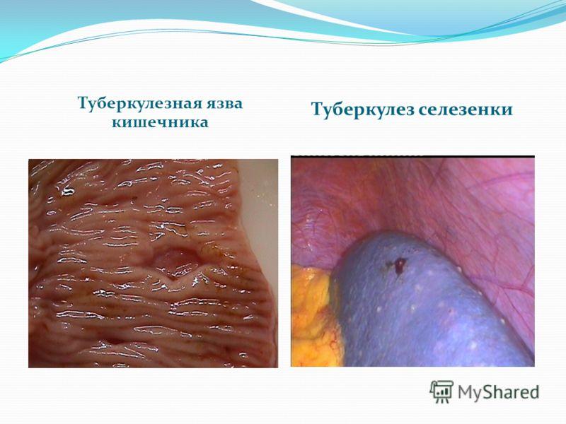 Туберкулезная язва кишечника Туберкулез селезенки
