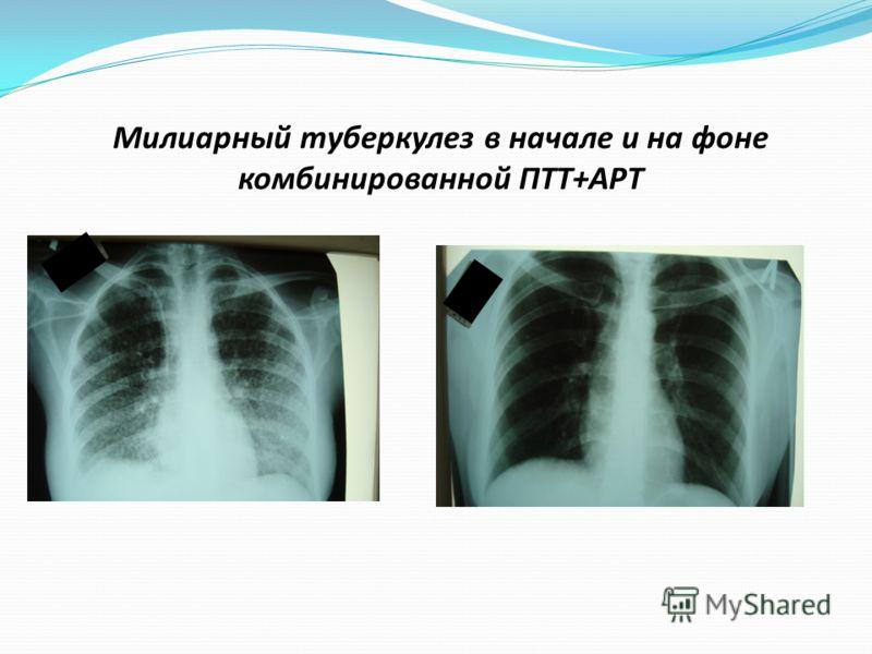 Милиарный туберкулез в начале и на фоне комбинированной ПТТ+АРТ