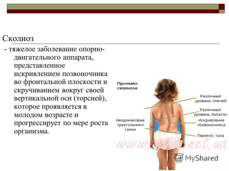 Сколиоз - тяжелое заболевание опорно- двигательного аппарата, представленное искривлением позвоночника во фронтальной плоскости и скручиванием вокруг своей вертикальной оси (торсией), которое проявляется в молодом возрасте и прогрессирует по мере рос