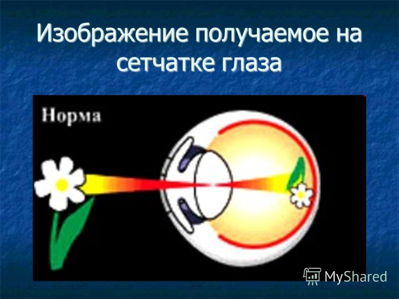 Изображение получаемое на сетчатке глаза