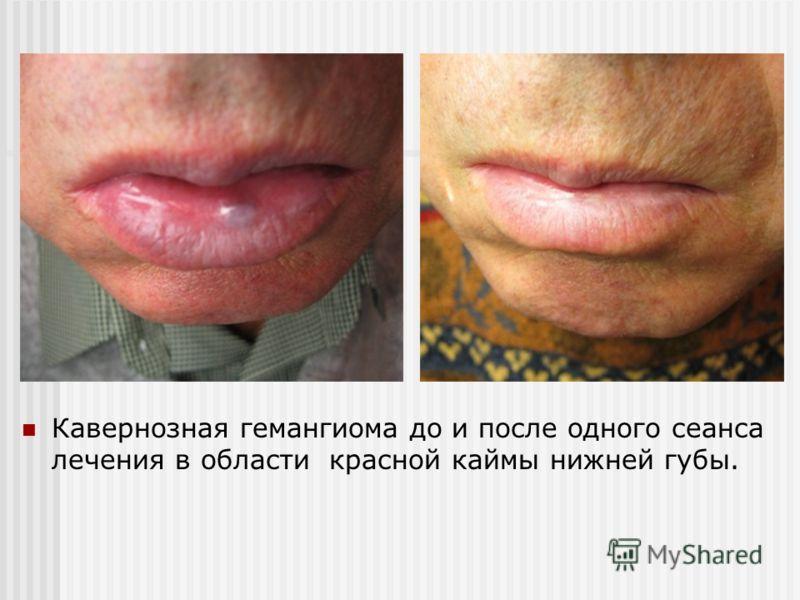Кавернозная гемангиома до и после одного сеанса лечения в области красной каймы нижней губы.