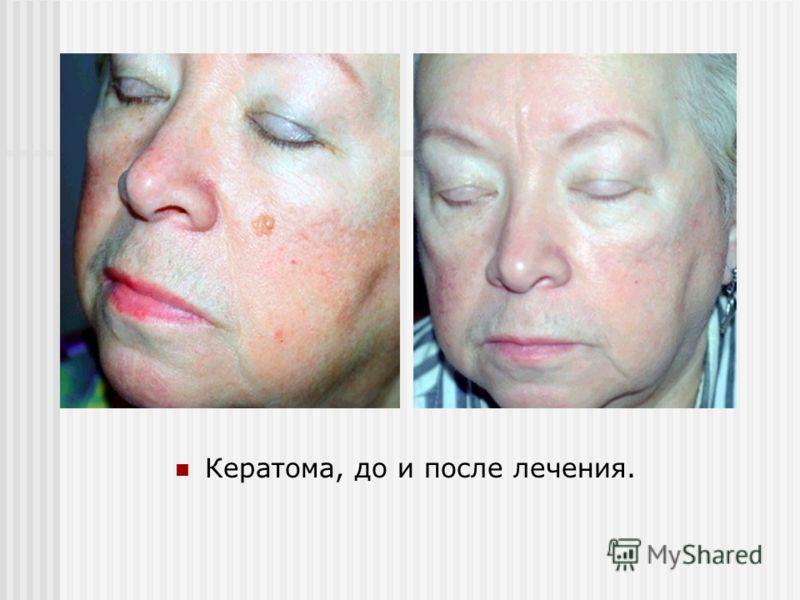 Кератома, до и после лечения.