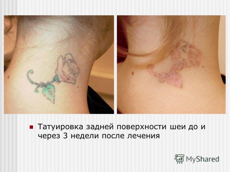 Татуировка задней поверхности шеи до и через 3 недели после лечения
