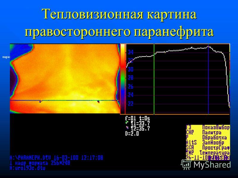 Тепловизионная картина правостороннего паранефрита паранефрит правосторонний