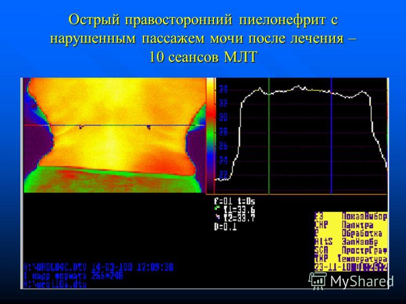 Острый правосторонний пиелонефрит с нарушенным пассажем мочи после лечения – 10 сеансов МЛТ