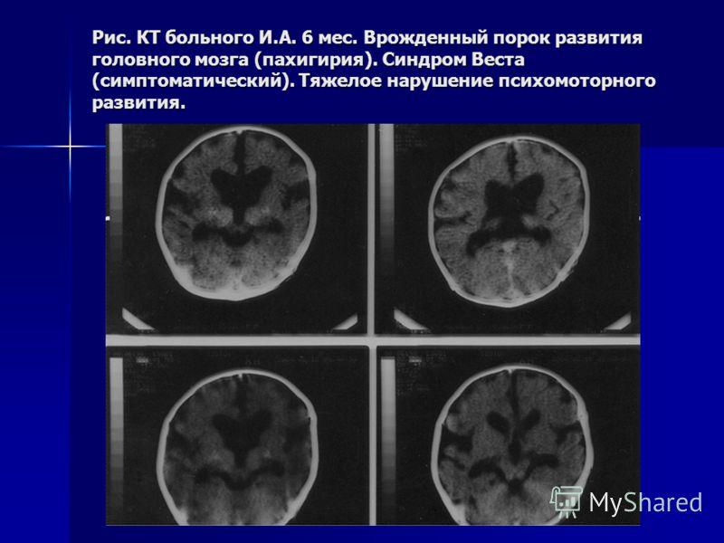 Рис. КТ больного И.А. 6 мес. Врожденный порок развития головного мозга (пахигирия). Синдром Веста (симптоматический). Тяжелое нарушение психомоторного развития.
