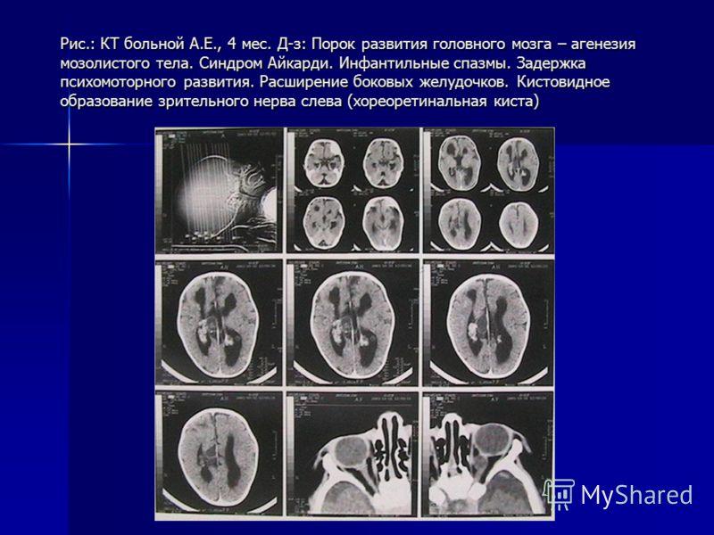 Рис.: КТ больной А.Е., 4 мес. Д-з: Порок развития головного мозга – агенезия мозолистого тела. Синдром Айкарди. Инфантильные спазмы. Задержка психомоторного развития. Расширение боковых желудочков. Кистовидное образование зрительного нерва слева (хор