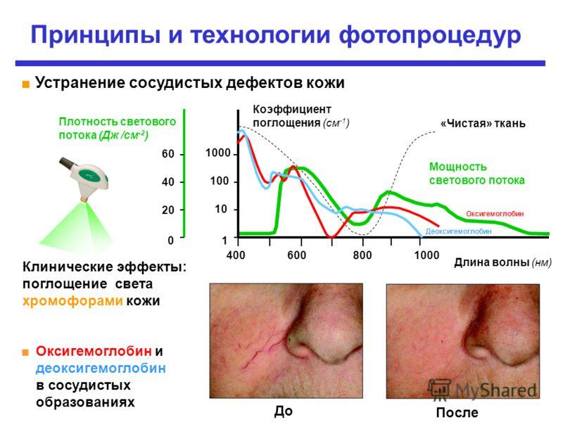 Принципы и технологии фотопроцедур Длина волны (нм) «Чистая» ткань Клинические эффекты: поглощение света хромофорами кожи 1 10 100 1000 4006008001000 Оксигемоглобин и деоксигемоглобин в сосудистых образованиях 0 2020 4040 6060 Плотность светового пот
