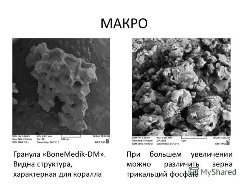 МАКРО Гранула «BoneMedik-DM». Видна структура, характерная для коралла При большем увеличении можно различить зерна трикальций фосфата