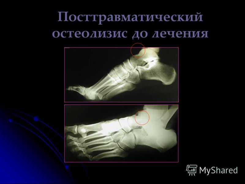 Посттравматический остеолизис до лечения