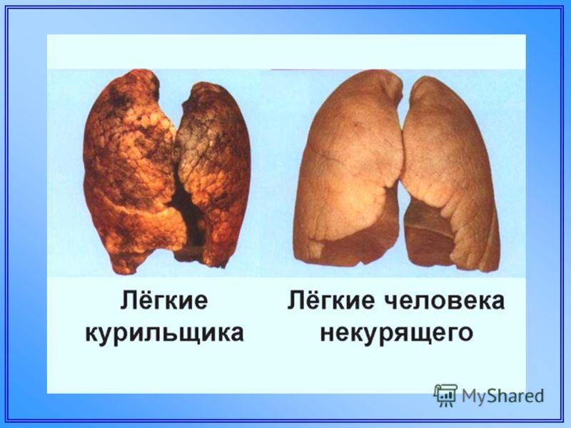 Распечатать как бросить курить