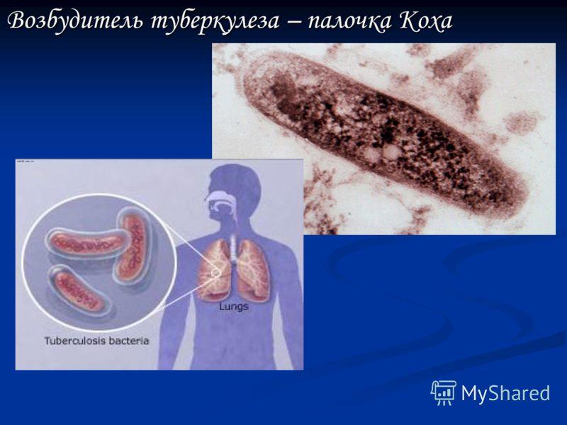 Болезнетворные бактерии Возбудитель ангины – Стрептококк Возбудитель сифилиса – бледная Спирохета бледная Спирохета