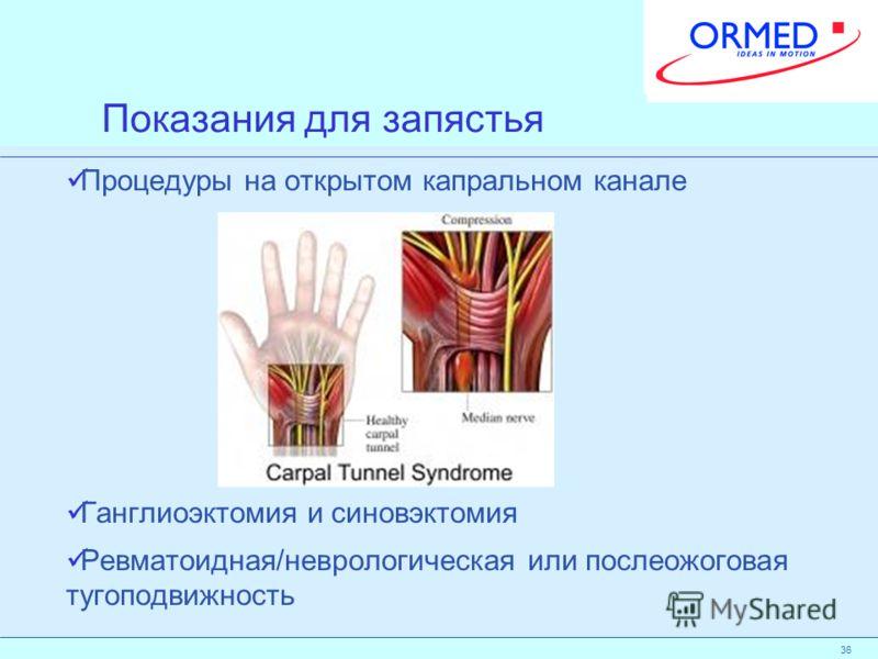 36 Показания для запястья Процедуры на открытом капральном канале Ганглиоэктомия и синовэктомия Ревматоидная/неврологическая или послеожоговая тугоподвижность