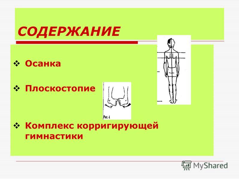 СОДЕРЖАНИЕ Осанка Плоскостопие Комплекс корригирующей гимнастики