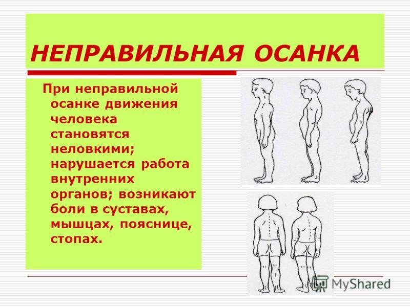 НЕПРАВИЛЬНАЯ ОСАНКА При неправильной осанке движения человека становятся неловкими; нарушается работа внутренних органов; возникают боли в суставах, мышцах, пояснице, стопах.