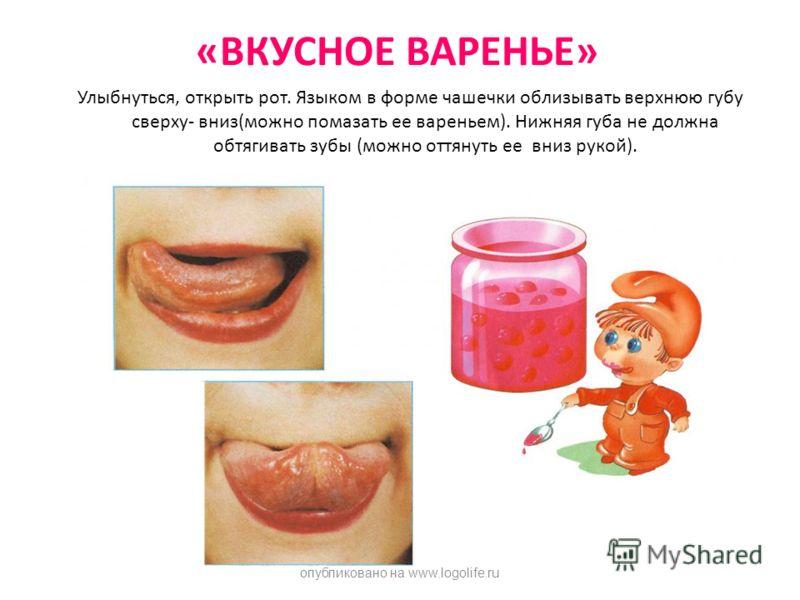 «ВКУСНОЕ ВАРЕНЬЕ» Улыбнуться, открыть рот. Языком в форме чашечки облизывать верхнюю губу сверху- вниз(можно помазать ее вареньем). Нижняя губа не должна обтягивать зубы (можно оттянуть ее вниз рукой). опубликовано на www.logolife.ru