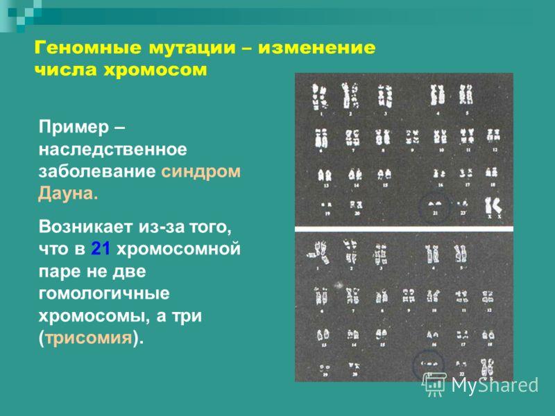 Геномные мутации – изменение числа хромосом Пример – наследственное заболевание синдром Дауна. Возникает из-за того, что в 21 хромосомной паре не две гомологичные хромосомы, а три (трисомия).