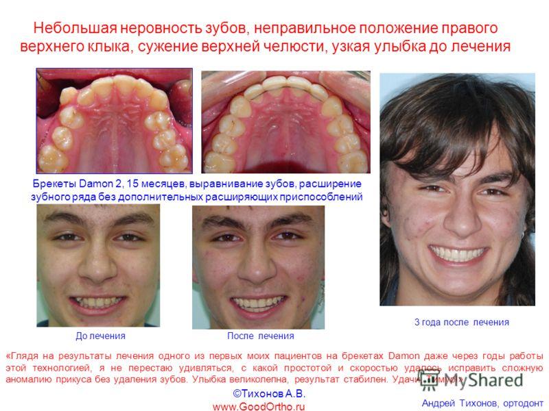 Небольшая неровность зубов, неправильное положение правого верхнего клыка, сужение верхней челюсти, узкая улыбка до лечения Брекеты Damon 2, 15 месяцев, выравнивание зубов, расширение зубного ряда без дополнительных расширяющих приспособлений До лече