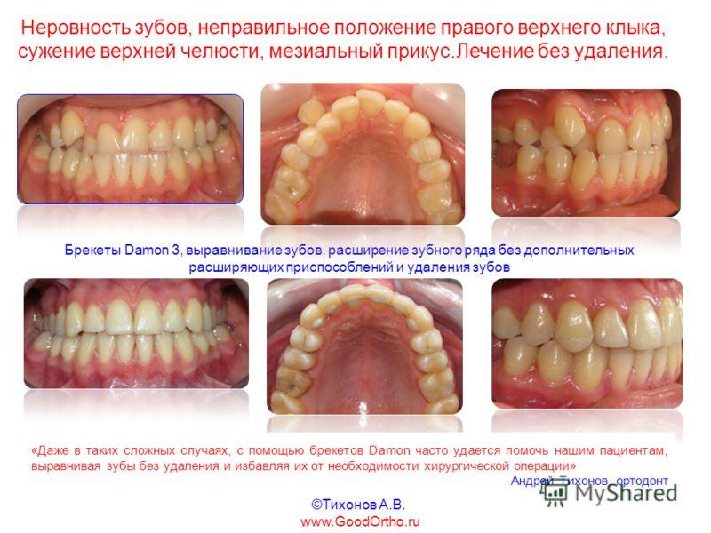 Неровность зубов, неправильное положение правого верхнего клыка, сужение верхней челюсти, мезиальный прикус.Лечение без удаления. Брекеты Damon 3, выравнивание зубов, расширение зубного ряда без дополнительных расширяющих приспособлений и удаления зу
