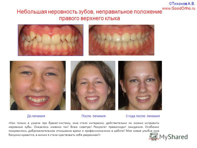 Небольшая неровность зубов, неправильное положение правого верхнего клыка «Как только я узнала про брекет-систему, мне стало интересно, действительно ли можно исправить неровные зубы. Оказалось именно так! Всем советую! Результат превосходит ожидания